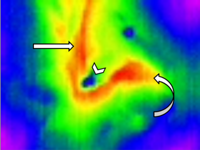 Figure 2  - Thermal image of damaged foregut. Straight arrow - Esophagus. Curved arrow - Stomach. Chevron - Constrast Extravasation.