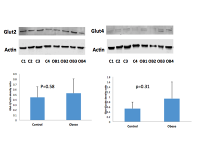 GLUT2 and GLUT4 expression