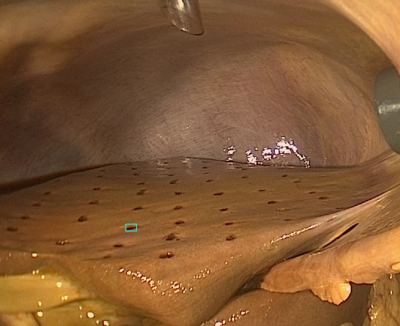 (A) Markers on the liver's surface