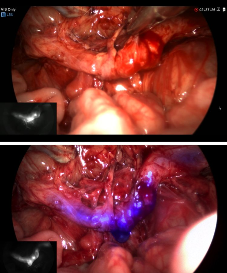 Figure 1: Fluorescent visualization of ureteral injury with effluent of urine from the ureter, visualized with and without fluorescence laparoscopy.