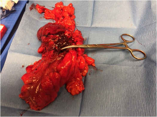 Image 1. Gross specimen of sigmoid colon fistulizing to the patent urachus rement indicated by the clamp.