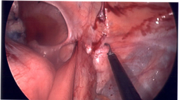 cancer in rectal stump