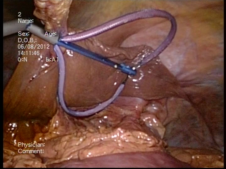 The safety and efficacy of a new liver retractor for the ...
