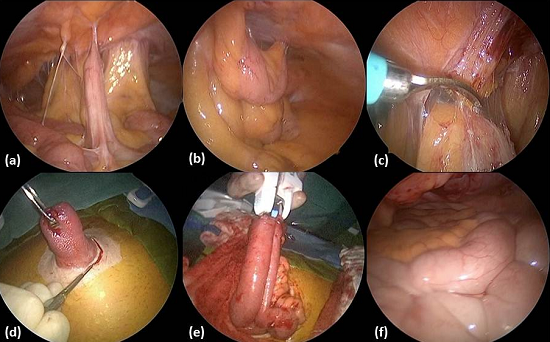 Laparoscopic Assisted Ileostomy Closure Sages Abstract Archives