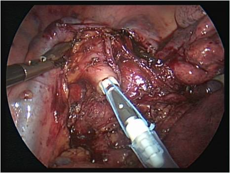 OrVil Anvil EEA inserted on orogastric tube and pulled through
