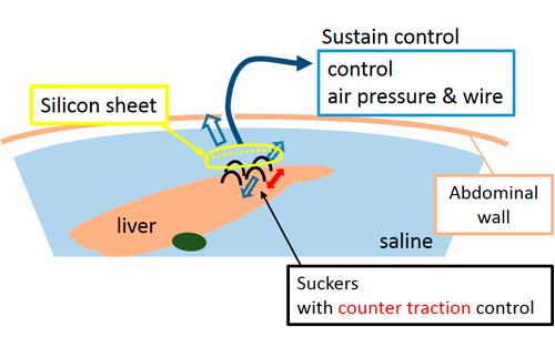 Scheme of the retractor system under water