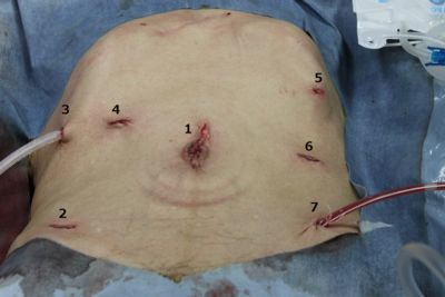 Simultaneous Laparoscopic Surgery For Advanced Gastric And Colon Cancer Sages Abstract Archives