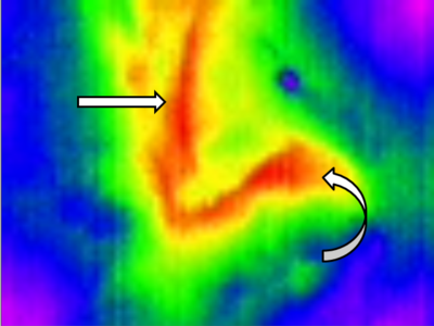 Figure 1 - Thermal image of native, undamaged foregut. Straight arrow - Esophagus. Curved arrow - Stomach.