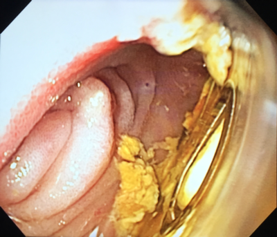 Image 3. Widely patent anastomosis and mobile magnetic rings, 10 days post procedure