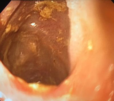 Image 4. Anastomosis, 1 month post procedure