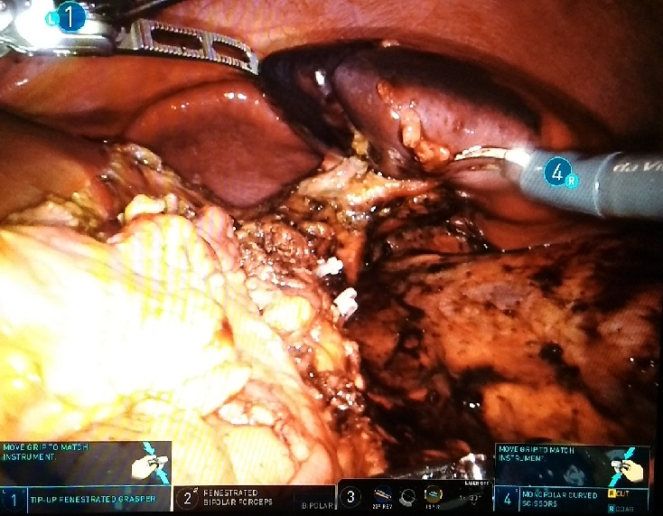 After Distal Pancreatectomy