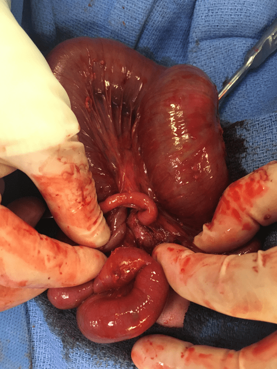 Image 5a: Operative photo depicting a Type IIIb intestinal atresia with an internal hernia through a mesenteric defect