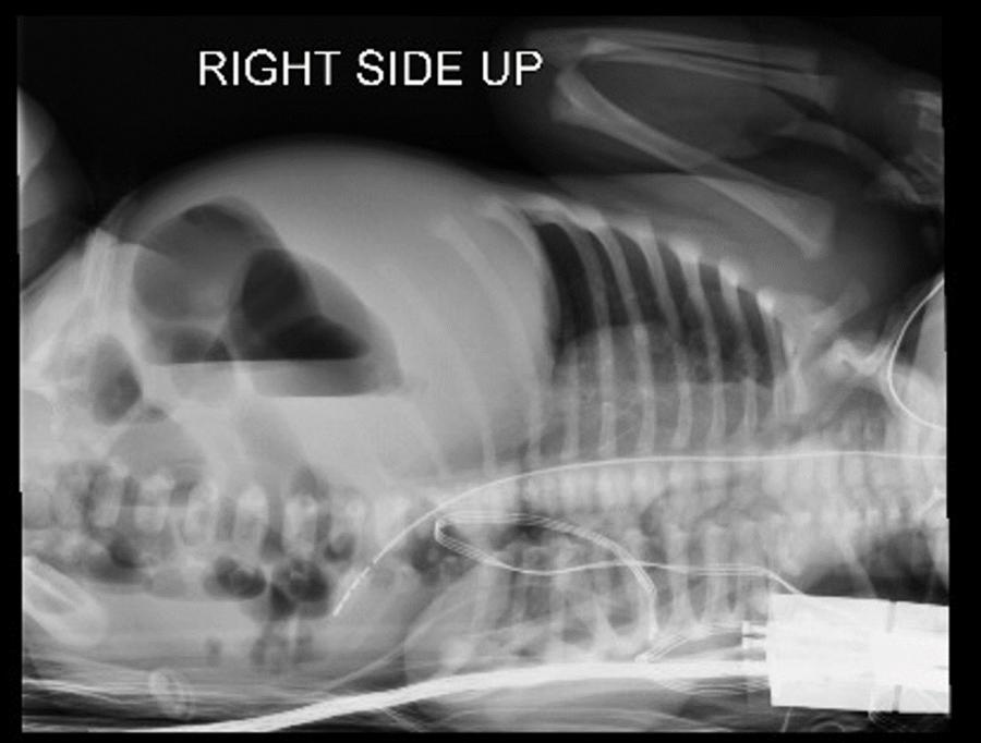 Image 2: Left Lateral Decubitus plain film showing air fluid levels and obstruction
